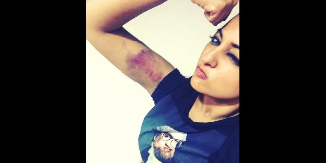 Sonakshi Sinha gets bruised while shooting an action sequence for Akira